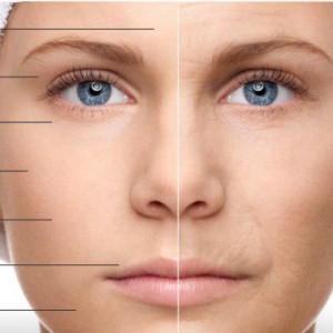 شفاف سازی پوست با طب سوزنی