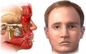 درمان انواع فلج با طب سوزنی